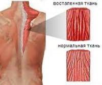 Причины развития грудного миозита: ОРВИ, переохлаждение и паразиты