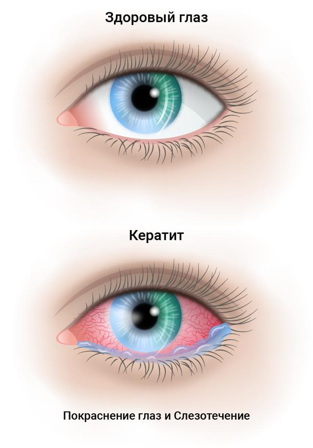 Причины и диагностика кератита глаза - симптомы, лечение и профилактика