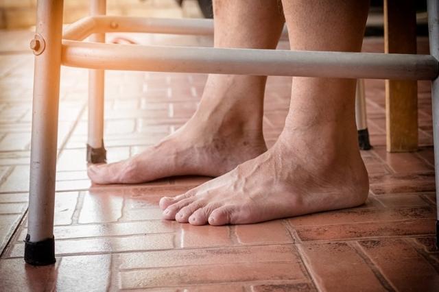 Отек ног у пожилых людей: что делать в первую очередь